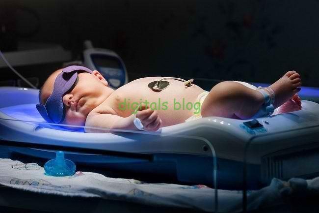 Jangan Anggap Remeh, Berikut 4 Cara Merawat Bayi Prematur yang Sakit Kuning
